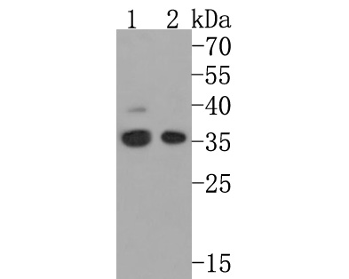 Western blot analysis of Cdc34 on different lysates using anti-Cdc34 antibody at 1/1,000 dilution.<br />  Positive control: <br />  Lane 1: K562 <br />  Lane 2: Jurkat