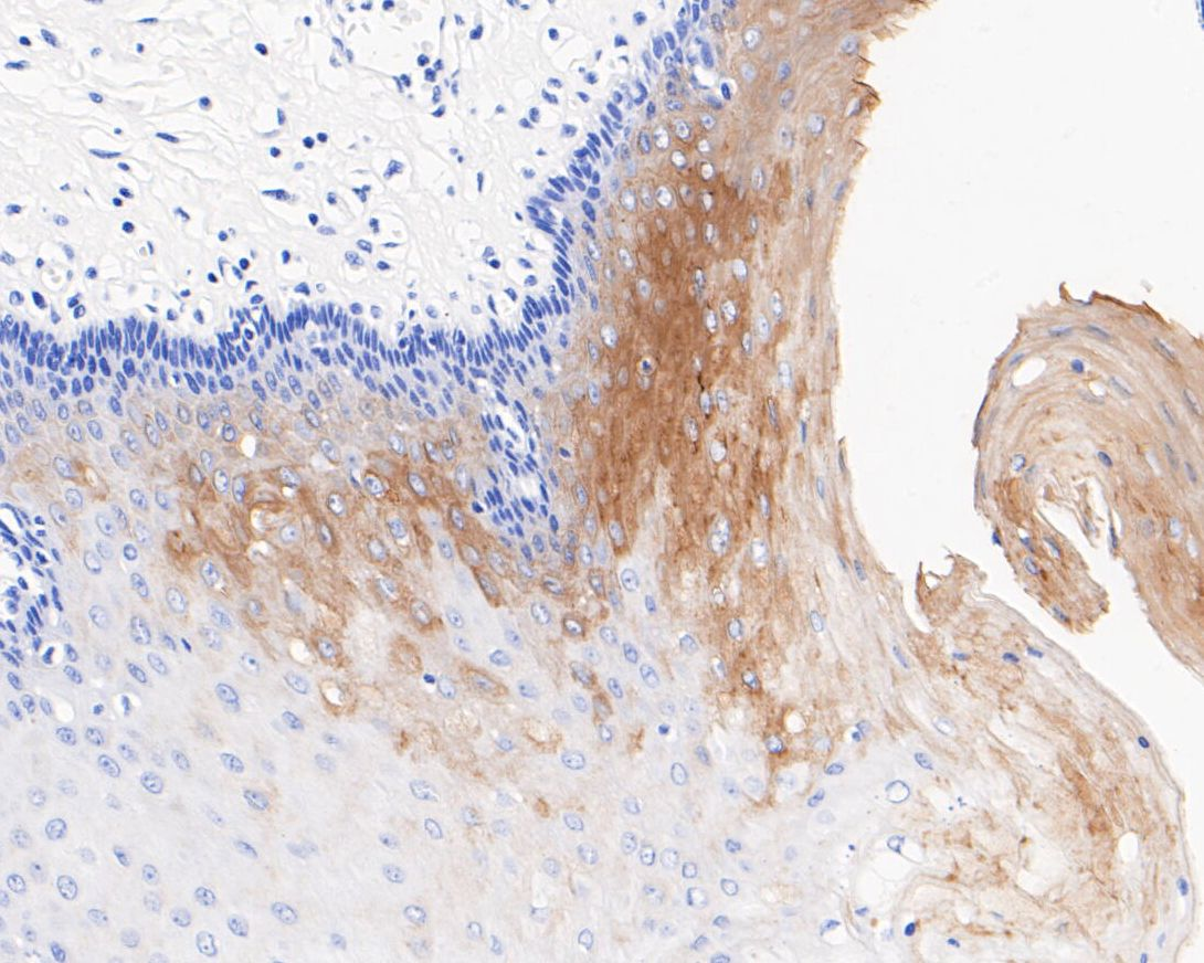 Immunohistochemical analysis of paraffin-embedded human esophagus tissue using anti-Cytokeratin 2e antibody. The section was pre-treated using heat mediated antigen retrieval with Tris-EDTA buffer (pH 8.0-8.4) for 20 minutes.The tissues were blocked in 5% BSA for 30 minutes at room temperature, washed with ddH2O and PBS, and then probed with the primary antibody (ET1701-13, 1/50) for 30 minutes at room temperature. The detection was performed using an HRP conjugated compact polymer system. DAB was used as the chromogen. Tissues were counterstained with hematoxylin and mounted with DPX.