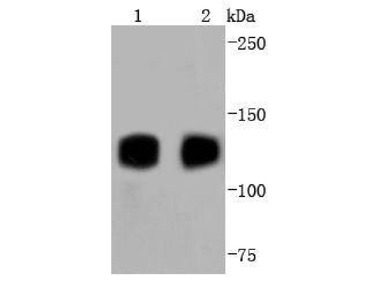 Western blot analysis of TrkA+B+C on different lysates using anti-TrkA+B+C antibody at 1/1,000 dilution.<br /> Positive control:   <br /> Lane 1: Rat brain      <br /> Lane 2: Mouse brain