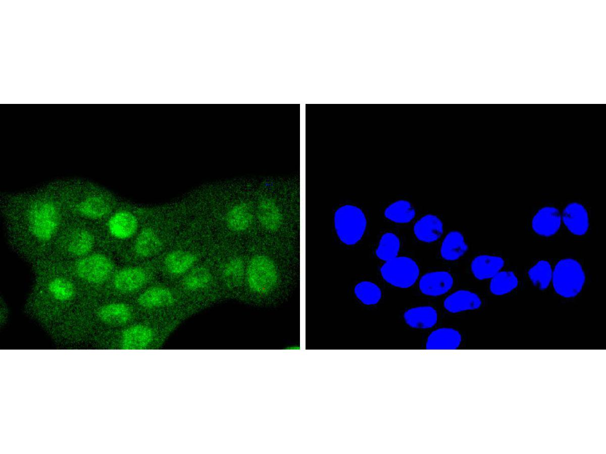 ICC staining of Sumo 2+3 in RH-35 cells (green). Formalin fixed cells were permeabilized with 0.1% Triton X-100 in TBS for 10 minutes at room temperature and blocked with 1% Blocker BSA for 15 minutes at room temperature. Cells were probed with the primary antibody (ET1701-17, 1/50) for 1 hour at room temperature, washed with PBS. Alexa Fluor®488 Goat anti-Rabbit IgG was used as the secondary antibody at 1/1,000 dilution. The nuclear counter stain is DAPI (blue).