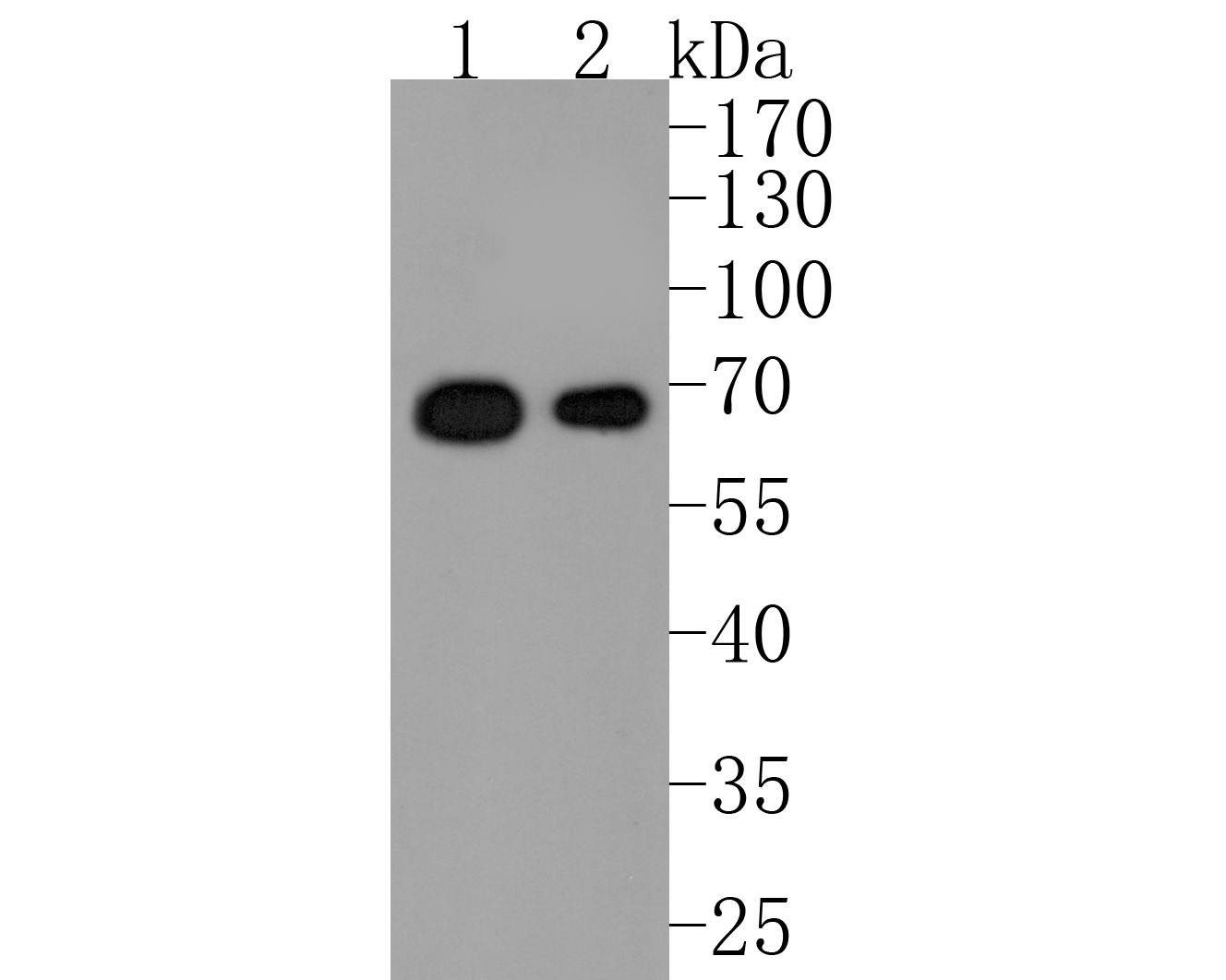 Western blot analysis of A-RAF on different lysates. Proteins were transferred to a PVDF membrane and blocked with 5% BSA in PBS for 1 hour at room temperature. The primary antibody (ET1701-18, 1/500) was used in 5% BSA at room temperature for 2 hours. Goat Anti-Rabbit IgG - HRP Secondary Antibody (HA1001) at 1:200,000 dilution was used for 1 hour at room temperature.<br /> Positive control: <br /> Lane 1: Hela cell lysate<br /> Lane 2: A431 cell lysate