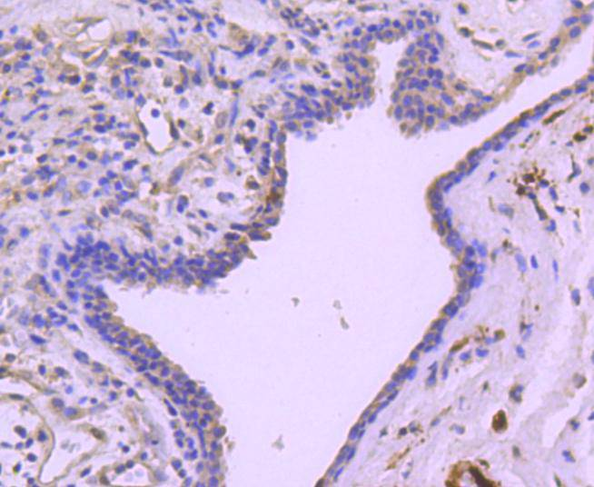 Immunohistochemical analysis of paraffin-embedded human breast carcinoma tissue using anti-Phospho-Hsp27(S78) antibody. Counter stained with hematoxylin.