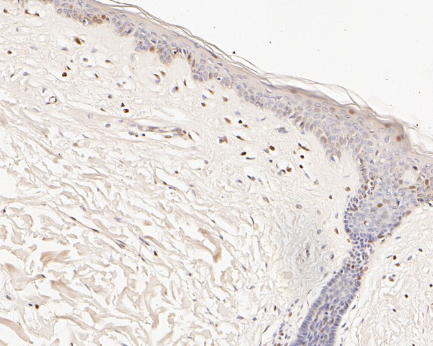 Immunohistochemical analysis of paraffin-embedded human skin tissue using anti-pro Caspase-9 antibody. The section was pre-treated using heat mediated antigen retrieval with sodium citrate buffer (pH 6.0) for 20 minutes. The tissues were blocked in 5% BSA for 30 minutes at room temperature, washed with ddH2O and PBS, and then probed with the primary antibody (ET1701-22, 1/100) for 30 minutes at room temperature. The detection was performed using an HRP conjugated compact polymer system. DAB was used as the chromogen. Tissues were counterstained with hematoxylin and mounted with DPX.