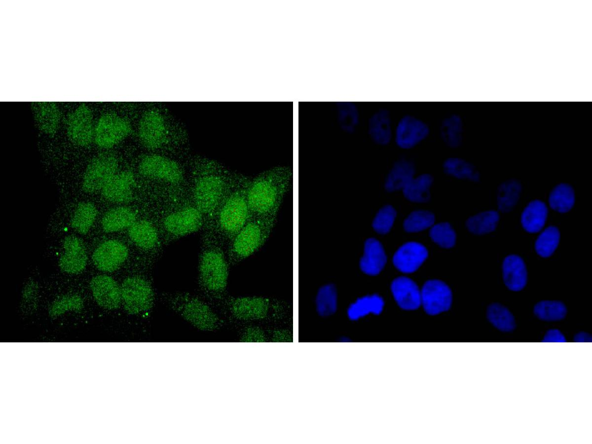 ICC staining SIRT6 in NIH/3T3 cells (green). The nuclear counter stain is DAPI (blue). Cells were fixed in paraformaldehyde, permeabilised with 0.25% Triton X100/PBS.