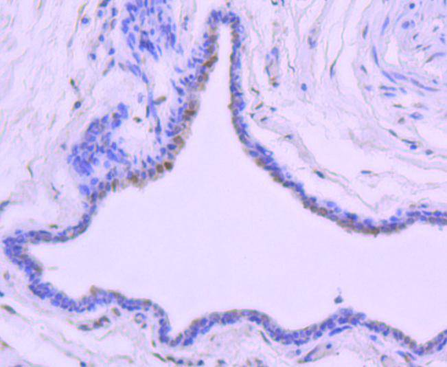 Immunohistochemical analysis of paraffin-embedded human breast carcinoma tissue using anti-Phospho-c-Jun(T91) antibody. Counter stained with hematoxylin.