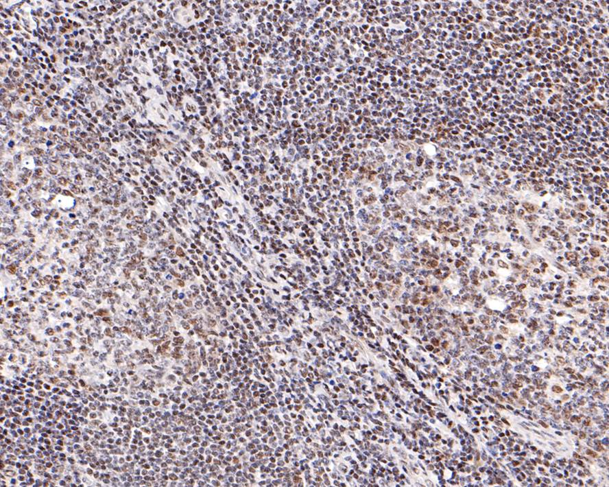 Flow cytometric analysis of Hela cells with STAT4 antibody at 1/50 dilution (red) compared with an unlabelled control (cells without incubation with primary antibody; black). Alexa Fluor 488-conjugated goat anti rabbit IgG was used as the secondary antibody.