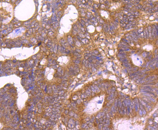 Flow cytometric analysis of TSG101 was done on K562 cells. The cells were fixed, permeabilized and stained with the primary antibody (ET1701-59, 1/50) (red). After incubation of the primary antibody at room temperature for an hour, the cells were stained with a Alexa Fluor 488-conjugated Goat anti-Rabbit IgG Secondary antibody at 1/1000 dilution for 30 minutes.Unlabelled sample was used as a control (cells without incubation with primary antibody; black).