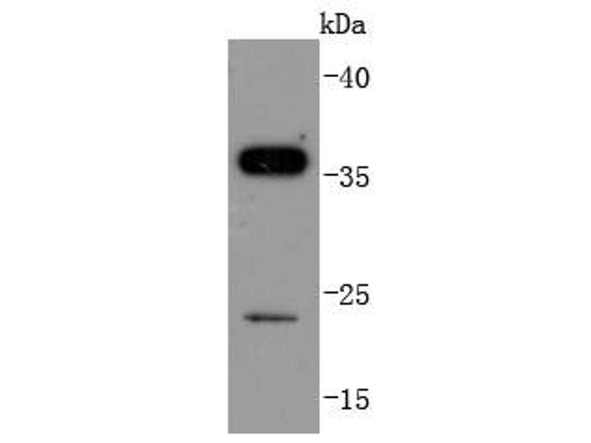 Western blot analysis of SIRT5 on Jurkat cells lysates using anti-SIRT5 antibody at 1/1,000 dilution.