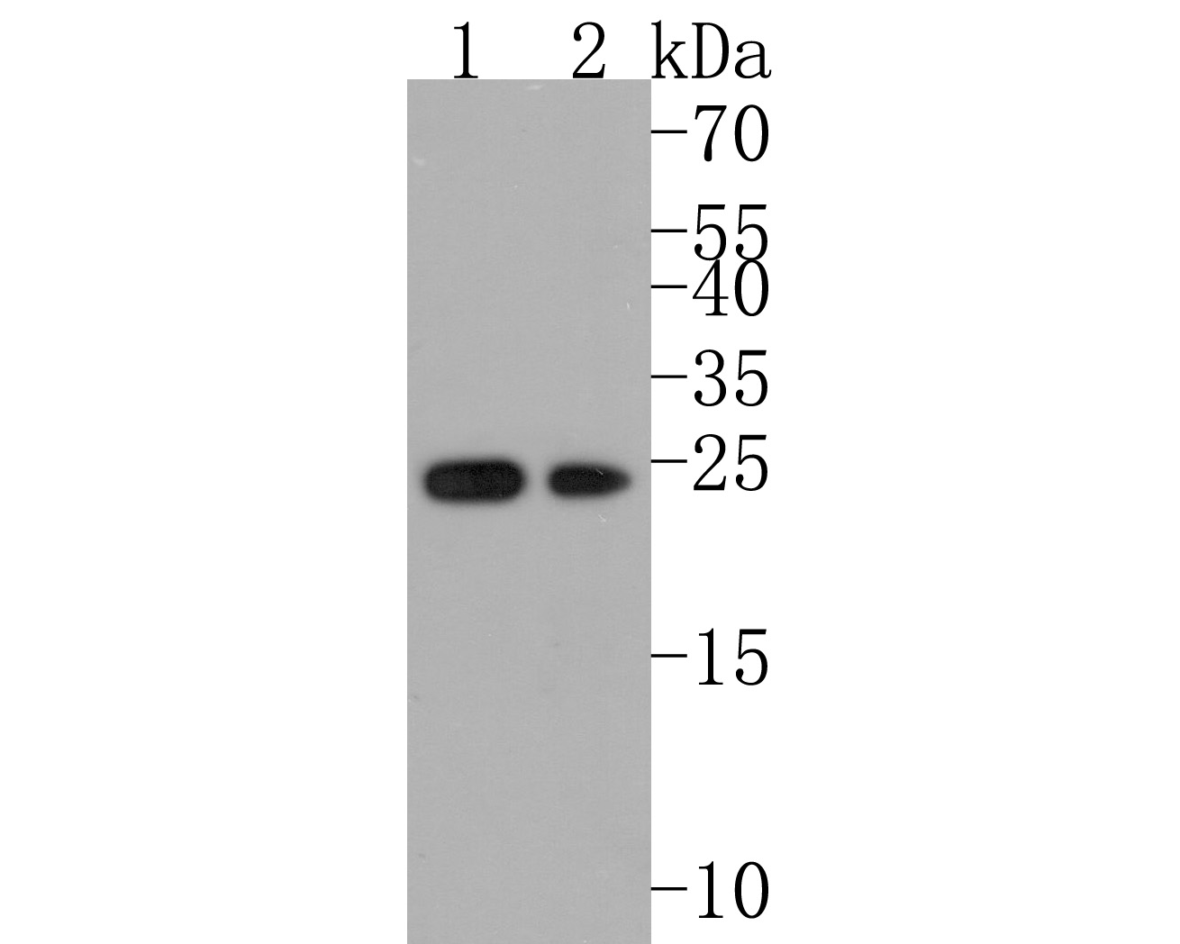 Western blot analysis of Peroxiredoxin 2 on different lysates using anti-Peroxiredoxin 2 antibody at 1/1,000 dilution.<br /> Positive control: <br /> Lane 1: Hela <br /> Lane 2: HepG2