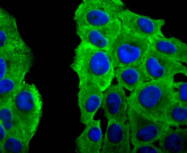 ICC staining Peroxiredoxin 2 in RH-35 cells (green). The nuclear counter stain is DAPI (blue). Cells were fixed in paraformaldehyde, permeabilised with 0.25% Triton X100/PBS.