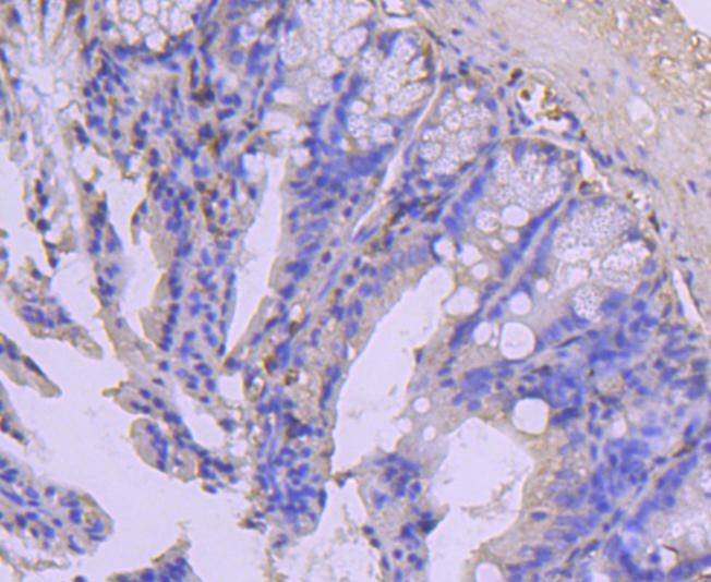 Immunohistochemical analysis of paraffin-embedded human colon carcinoma tissue using anti-COX IV antibody. The section was pre-treated using heat mediated antigen retrieval with Tris-EDTA buffer (pH 8.0-8.4) for 20 minutes.The tissues were blocked in 5% BSA for 30 minutes at room temperature, washed with ddH2O and PBS, and then probed with the primary antibody (ET1701-63, 1/50) for 30 minutes at room temperature. The detection was performed using an HRP conjugated compact polymer system. DAB was used as the chromogen. Tissues were counterstained with hematoxylin and mounted with DPX.