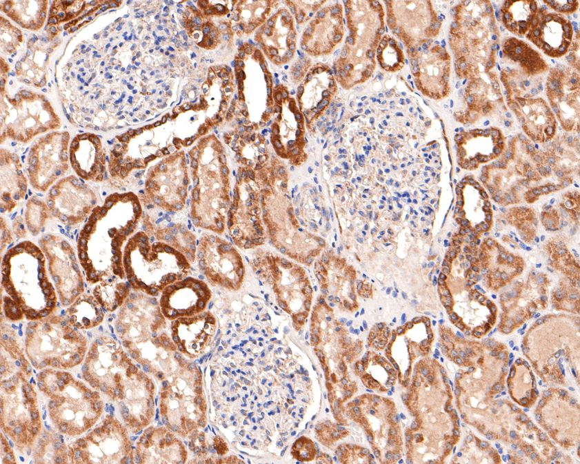 Immunohistochemical analysis of paraffin-embedded mouse colon tissue using anti-COX IV antibody. The section was pre-treated using heat mediated antigen retrieval with Tris-EDTA buffer (pH 8.0-8.4) for 20 minutes.The tissues were blocked in 5% BSA for 30 minutes at room temperature, washed with ddH2O and PBS, and then probed with the primary antibody (ET1701-63, 1/50) for 30 minutes at room temperature. The detection was performed using an HRP conjugated compact polymer system. DAB was used as the chromogen. Tissues were counterstained with hematoxylin and mounted with DPX.