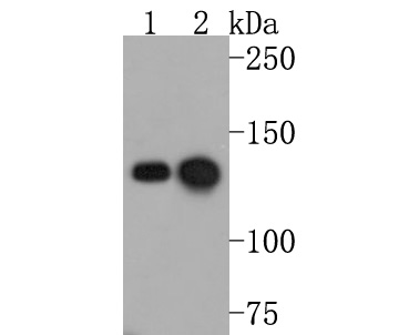 Western blot analysis of HDAC6 on Jurkat cell lysates. Proteins were transferred to a PVDF membrane and blocked with 5% BSA in PBS for 1 hour at room temperature. The primary antibody (ET1701-66, 1/500) was used in 5% BSA at room temperature for 2 hours. Goat Anti-Rabbit IgG - HRP Secondary Antibody (HA1001) at 1:5,000 dilution was used for 1 hour at room temperature.