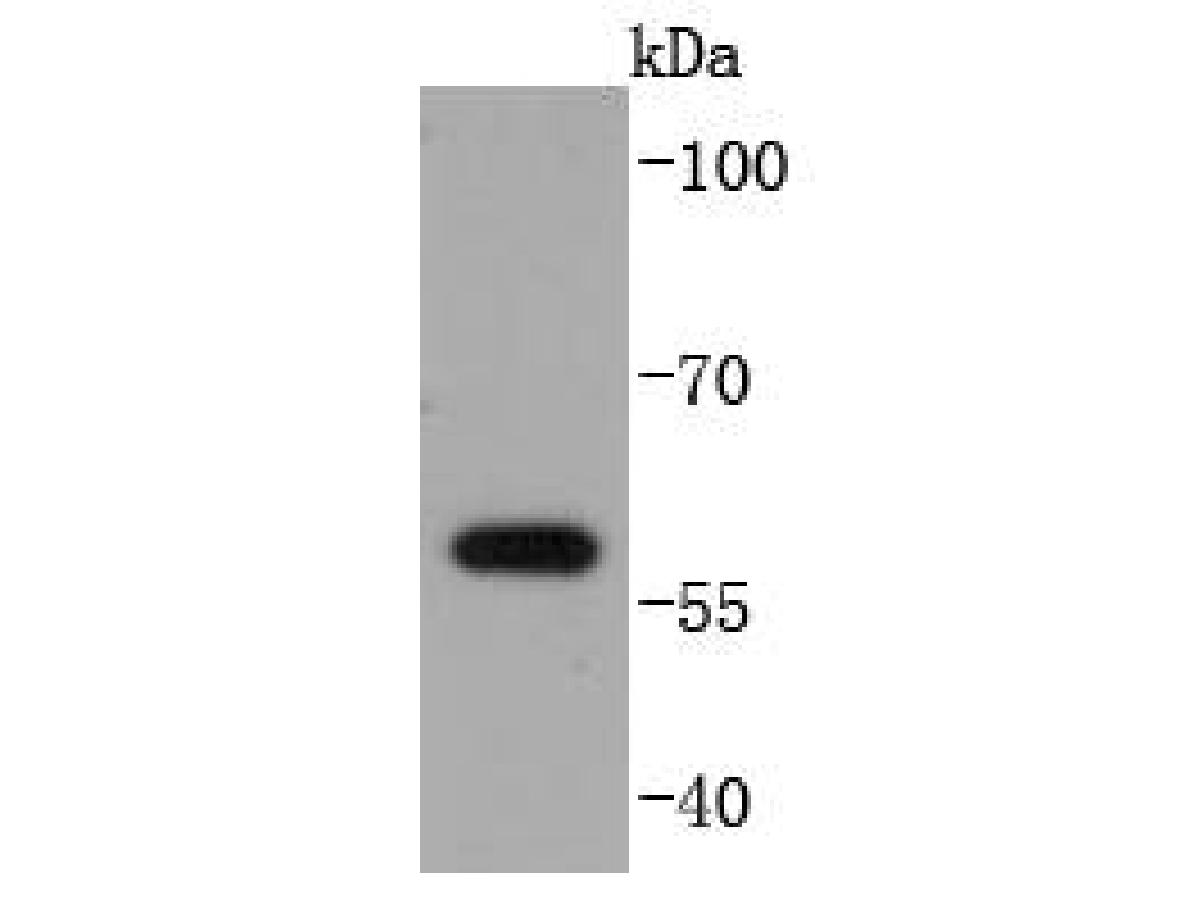 Western blot analysis of E2F1 on HepG2 cell lysates. Proteins were transferred to a PVDF membrane and blocked with 5% BSA in PBS for 1 hour at room temperature. The primary antibody (ET1701-73, 1/500) was used in 5% BSA at room temperature for 2 hours. Goat Anti-Rabbit IgG - HRP Secondary Antibody (HA1001) at 1:5,000 dilution was used for 1 hour at room temperature.