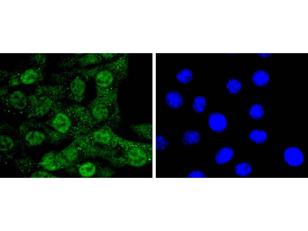 ICC staining CDC5L in NIH/3T3 cells (green). The nuclear counter stain is DAPI (blue). Cells were fixed in paraformaldehyde, permeabilised with 0.25% Triton X100/PBS.