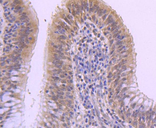 Immunohistochemical analysis of paraffin-embedded human lung carcinoma tissue using anti-DUSP1 antibody. The section was pre-treated using heat mediated antigen retrieval with Tris-EDTA buffer (pH 8.0-8.4) for 20 minutes.The tissues were blocked in 5% BSA for 30 minutes at room temperature, washed with ddH2O and PBS, and then probed with the primary antibody (ET1701-82, 1/50) for 30 minutes at room temperature. The detection was performed using an HRP conjugated compact polymer system. DAB was used as the chromogen. Tissues were counterstained with hematoxylin and mounted with DPX.