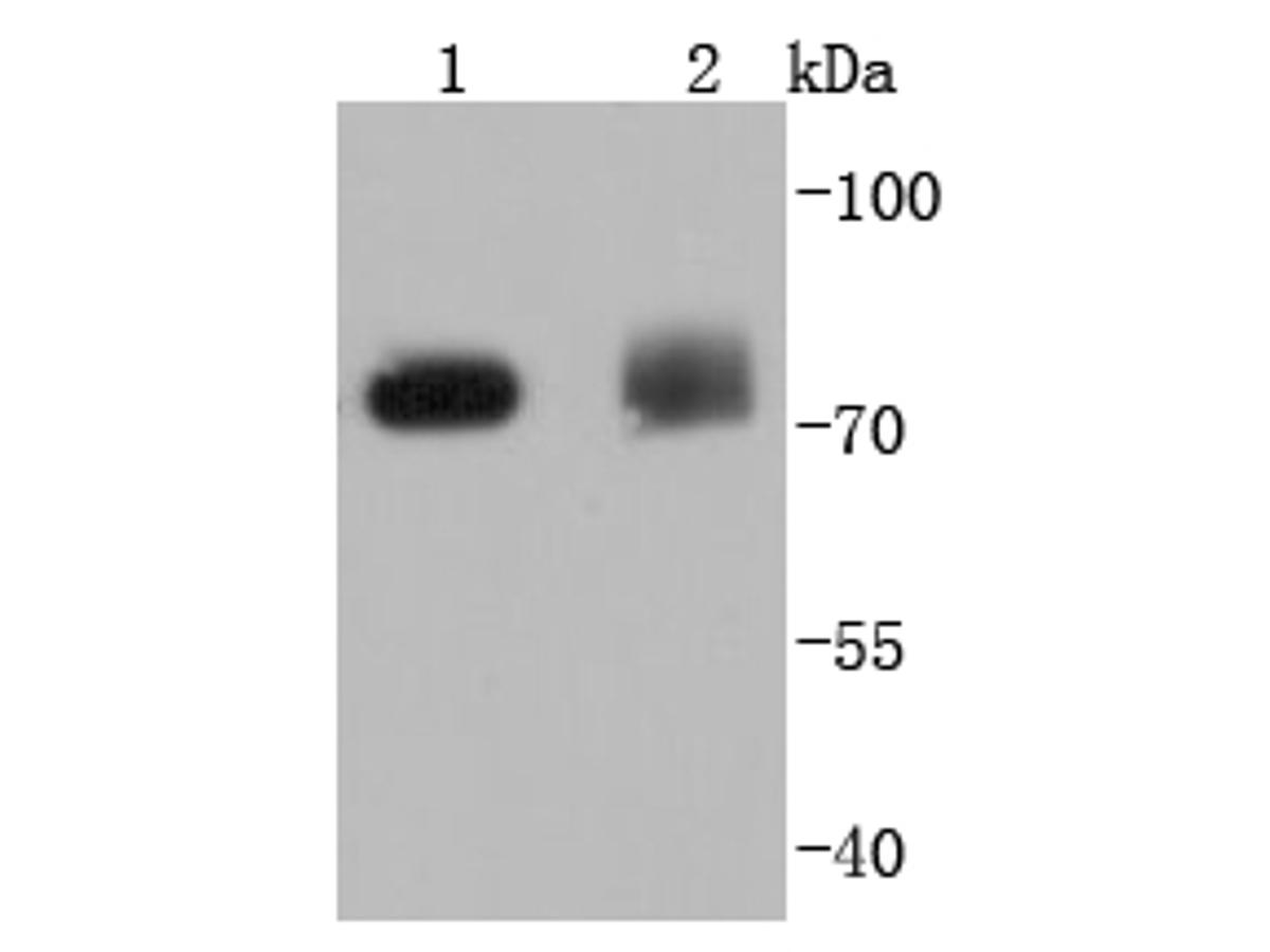 Western blot analysis of PKC delta on different lysates using anti-PKC delta antibody at 1/1,000 dilution.<br />  Positive control: <br />   Lane 1: Hela <br />   Lane 2: NIH/3T3