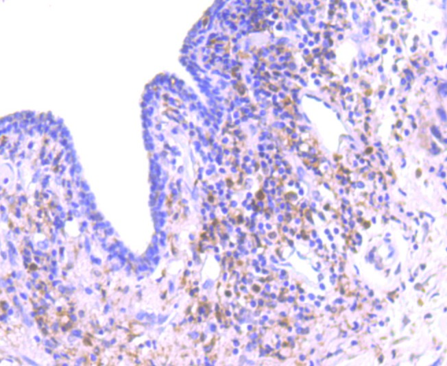 Immunohistochemical analysis of paraffin-embedded human breast carcinoma tissue using anti-PKC delta antibody. Counter stained with hematoxylin.