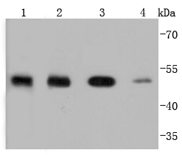 Western blot analysis of PTP1B on different lysates using anti-PTP1B antibody at 1/1,000 dilution.<br /> Positive control: <br /> Lane 1: zebrafish <br /> Lane 2: MCF-7 <br /> Lane 3: HepG2 <br /> Lane 4: A431