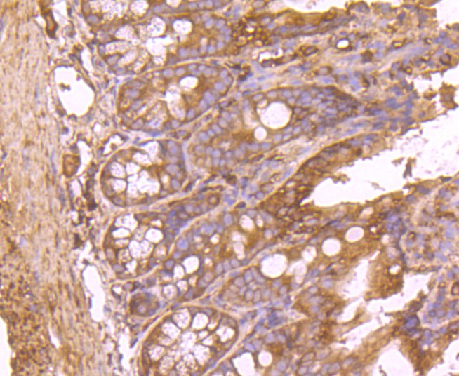 Immunohistochemical analysis of paraffin-embedded human liver tissue using anti-Fatty Acid Synthase antibody. The section was pre-treated using heat mediated antigen retrieval with Tris-EDTA buffer (pH 8.0-8.4) for 20 minutes.The tissues were blocked in 5% BSA for 30 minutes at room temperature, washed with ddH2O and PBS, and then probed with the primary antibody (ET1701-91, 1/50) for 30 minutes at room temperature. The detection was performed using an HRP conjugated compact polymer system. DAB was used as the chromogen. Tissues were counterstained with hematoxylin and mounted with DPX.
