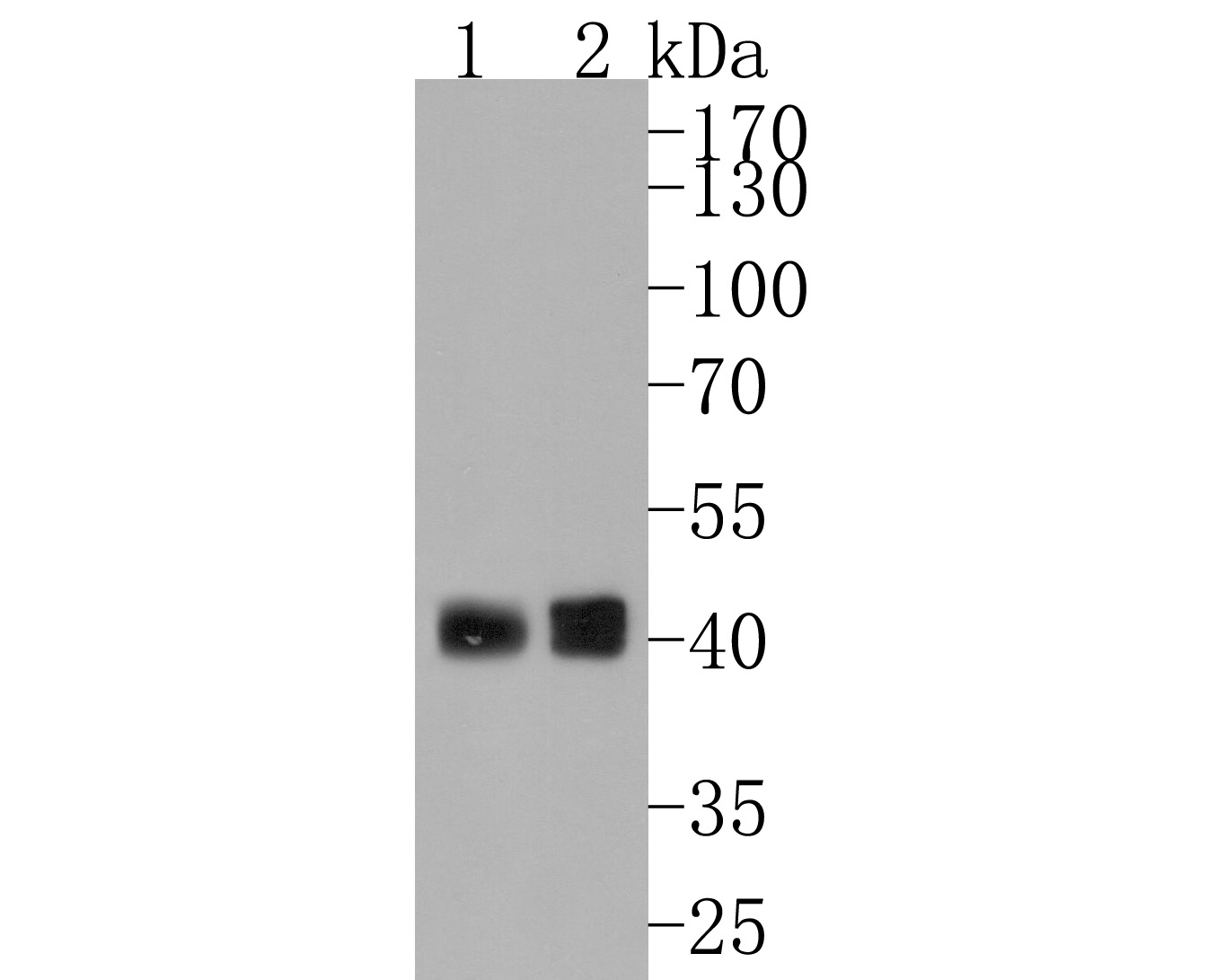 Western blot analysis of Fas(CD95) on different lysates. Proteins were transferred to a PVDF membrane and blocked with 5% BSA in PBS for 1 hour at room temperature. The primary antibody (ET1701-92, 1/500) was used in 5% BSA at room temperature for 2 hours. Goat Anti-Rabbit IgG - HRP Secondary Antibody (HA1001) at 1:5,000 dilution was used for 1 hour at room temperature.<br /> Positive control: <br /> Lane 1: Raji cell lysate<br /> Lane 2: Hela cell lysate