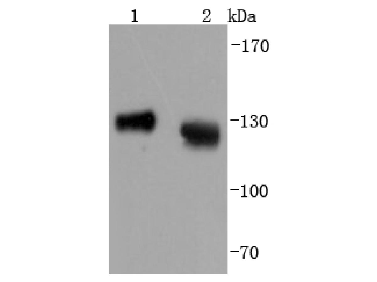 Western blot analysis of LAMP1 on different lysates. Proteins were transferred to a PVDF membrane and blocked with 5% BSA in PBS for 1 hour at room temperature. The primary antibody (ET1701-94, 1/500) was used in 5% BSA at room temperature for 2 hours. Goat Anti-Rabbit IgG - HRP Secondary Antibody (HA1001) at 1:40,000 dilution was used for 1 hour at room temperature.<br /> Positive control: <br /> Lane 1: Hela cell lysate<br /> Lane 2: Jurkat cell lysate
