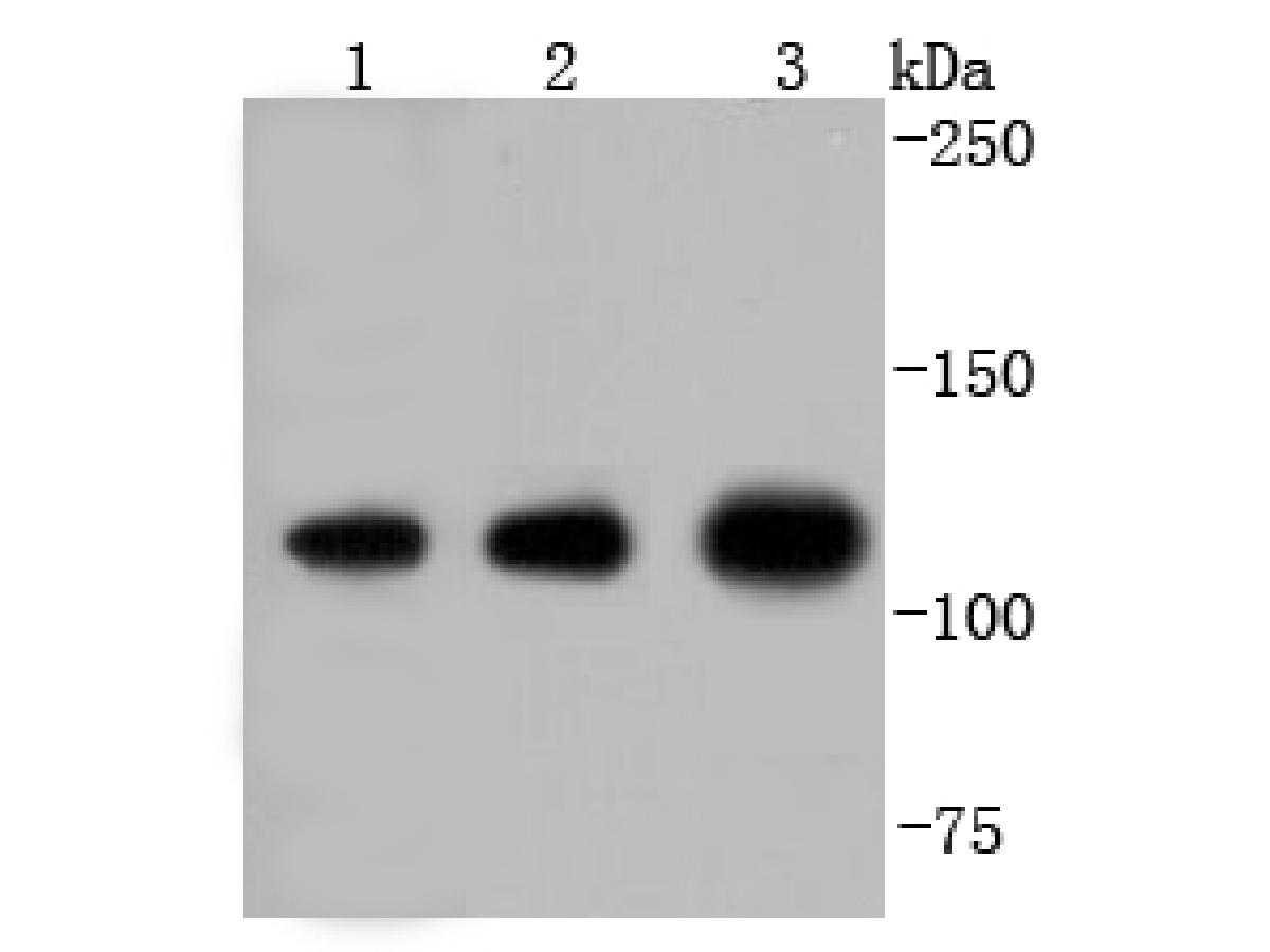 Western blot analysis of Insulin degrading enzyme on different lysates using anti-Insulin degrading enzyme antibody at 1/1,000 dilution.<br /> Positive control: <br />   Lane 1: zebrafish <br />   Lane 2: Hela <br />   Lane 3: K562