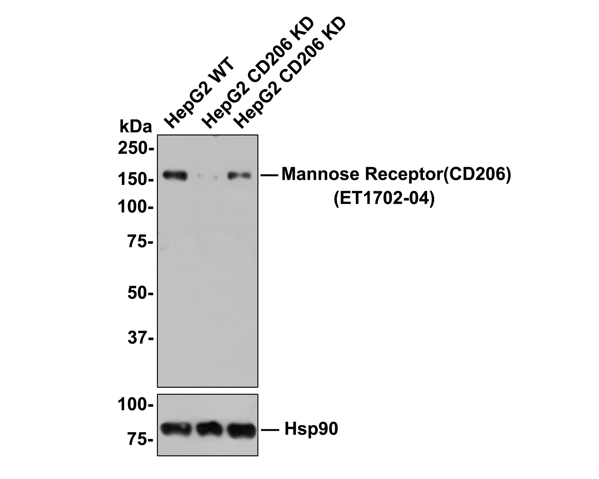 Western blot analysis of Mannose Receptor(CD206) on different lysates. Proteins were transferred to a PVDF membrane and blocked with 5% BSA in PBS for 1 hour at room temperature. The primary antibody (ET1702-04, 1/500) was used in 5% BSA at room temperature for 2 hours. Goat Anti-Rabbit IgG - HRP Secondary Antibody (HA1001) at 1:5,000 dilution was used for 1 hour at room temperature.<br />  Positive control: <br />  Lane 1: Human lung tissue lysate<br />  Lane 2: HepG2 cell lysate<br />  Lane 3: 293 cell lysate