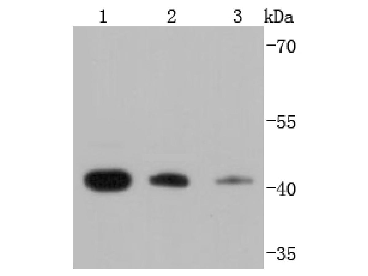 Western blot analysis of RPSA on different lysates using anti-RPSA antibody at 1/1,000 dilution.<br /> Positive control: <br /> Lane 1: K562 <br /> Lane 2: HepG2 <br /> Lane 3: A431