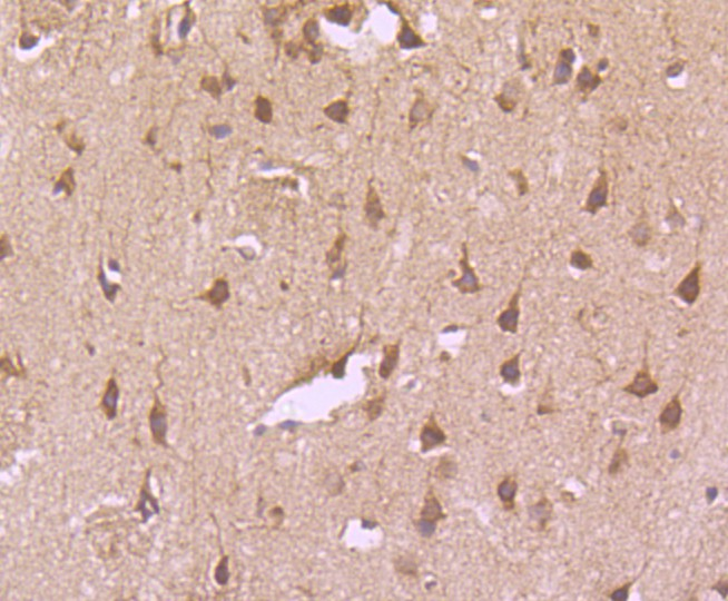 Immunohistochemical analysis of paraffin-embedded rat brain tissue using anti-Transferrin Receptor (CD71) antibody. The section was pre-treated using heat mediated antigen retrieval with Tris-EDTA buffer (pH 8.0-8.4) for 20 minutes.The tissues were blocked in 5% BSA for 30 minutes at room temperature, washed with ddH2O and PBS, and then probed with the primary antibody (ET1702-06, 1/50) for 30 minutes at room temperature. The detection was performed using an HRP conjugated compact polymer system. DAB was used as the chromogen. Tissues were counterstained with hematoxylin and mounted with DPX.