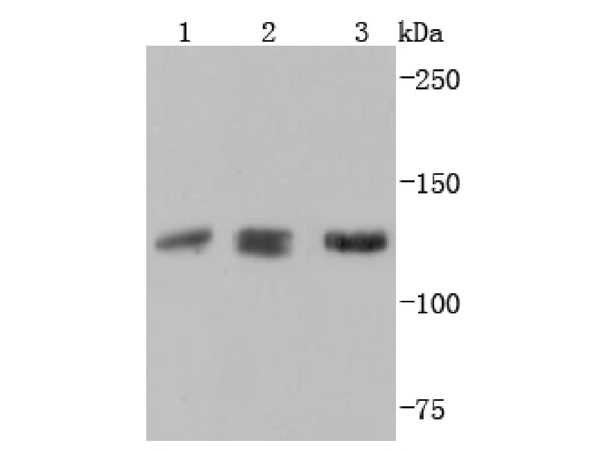 Western blot analysis of ABL2 on different lysates using anti-ABL2 antibody at 1/1,000 dilution.<br /> Positive control: <br />  Lane 1: Hela <br />  Lane 2: PC-12 <br />  Lane 3: Jurkat