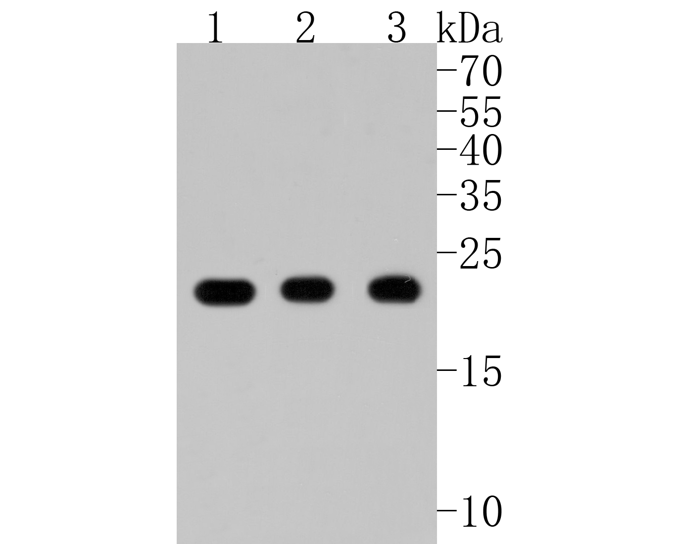 Western blot analysis of Peroxiredoxin 1 on different lysates. Proteins were transferred to a PVDF membrane and blocked with 5% BSA in PBS for 1 hour at room temperature. The primary antibody (ET1702-08, 1/500) was used in 5% BSA at room temperature for 2 hours. Goat Anti-Rabbit IgG - HRP Secondary Antibody (HA1001) at 1:5,000 dilution was used for 1 hour at room temperature.<br /> Positive control: <br /> Lane 1: Hela cell lysate<br /> Lane 2: A431 cell lysate<br /> Lane 2: HepG2 cell lysate