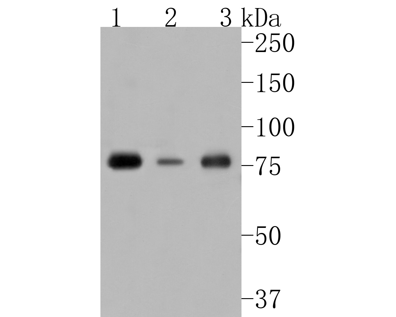 Western blot analysis of Phospho-PKC alpha (T638) on different lysates. Proteins were transferred to a PVDF membrane and blocked with 5% BSA in PBS for 1 hour at room temperature. The primary antibody (ET1702-17, 1/500) was used in 5% BSA at room temperature for 2 hours. Goat Anti-Rabbit IgG - HRP Secondary Antibody (HA1001) at 1:5,000 dilution was used for 1 hour at room temperature.<br /> Positive control: <br /> Lane 1: 293 cell lysate<br /> Lane 2: Hela cell lysate<br /> Lane 3: Jurkat cell lysate