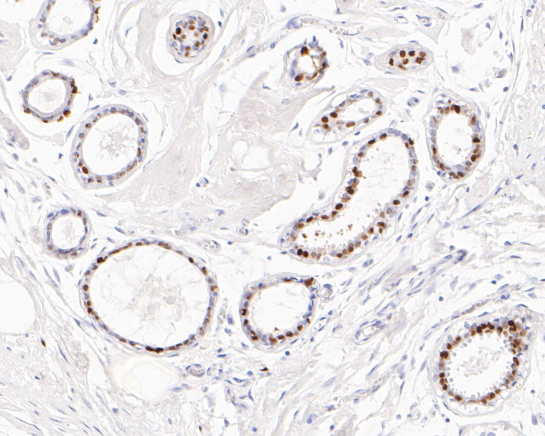 Immunohistochemical analysis of paraffin-embedded human breast tissue using anti-Progesterone Receptor antibody. The section was pre-treated using heat mediated antigen retrieval with sodium citrate buffer (pH 6.0) for 20 minutes. The tissues were blocked in 5% BSA for 30 minutes at room temperature, washed with ddH2O and PBS, and then probed with the primary antibody (ET1702-24, 1/50) for 30 minutes at room temperature. The detection was performed using an HRP conjugated compact polymer system. DAB was used as the chromogen. Tissues were counterstained with hematoxylin and mounted with DPX.