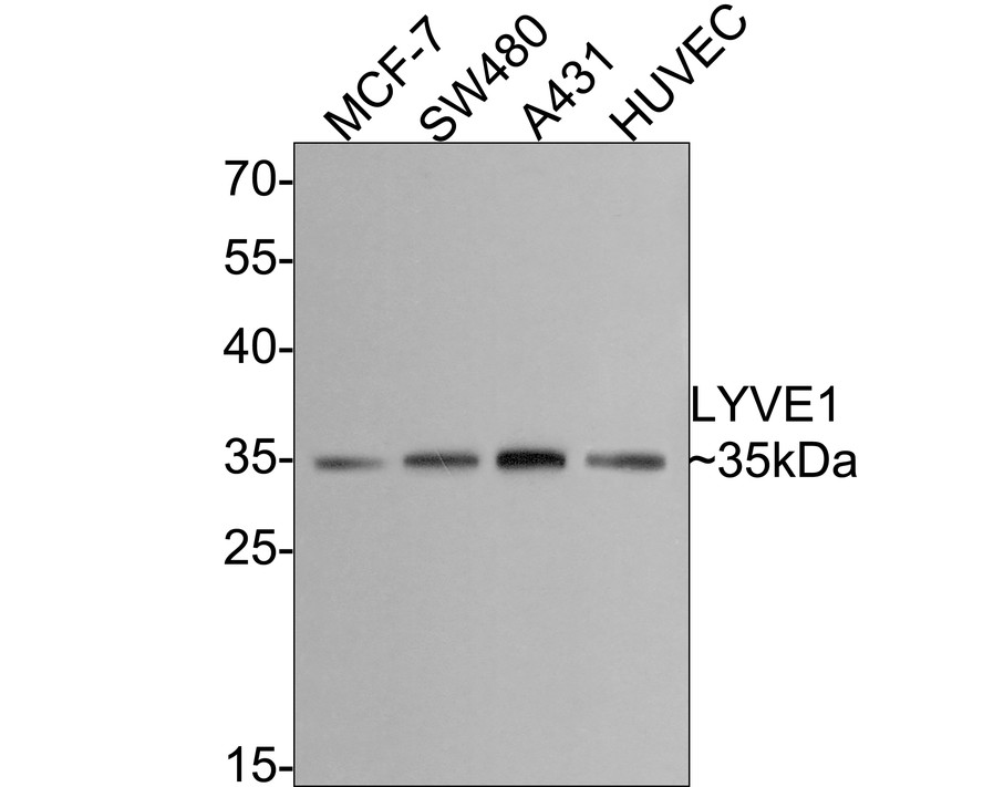 Western blot analysis of LYVE1 on different lysates. Proteins were transferred to a PVDF membrane and blocked with 5% BSA in PBS for 1 hour at room temperature. The primary antibody (ET1702-29, 1/500) was used in 5% BSA at room temperature for 2 hours. Goat Anti-Rabbit IgG - HRP Secondary Antibody (HA1001) at 1:5,000 dilution was used for 1 hour at room temperature.<br /> Positive control: <br /> Lane 1: MCF-7 cell lysate<br /> Lane 2: SW480 cell lysate