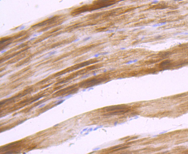 Immunohistochemical analysis of paraffin-embedded rat skeletal muscle tissue using anti-ACTN2 antibody. Counter stained with hematoxylin.