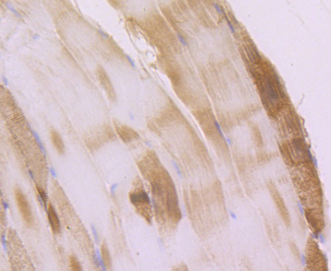 Immunohistochemical analysis of paraffin-embedded mouse skeletal tissue using anti-ACTN2 antibody. Counter stained with hematoxylin.