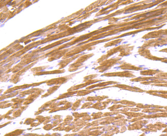 Immunohistochemical analysis of paraffin-embedded mouse heart tissue using anti-ACTN2 antibody. Counter stained with hematoxylin.