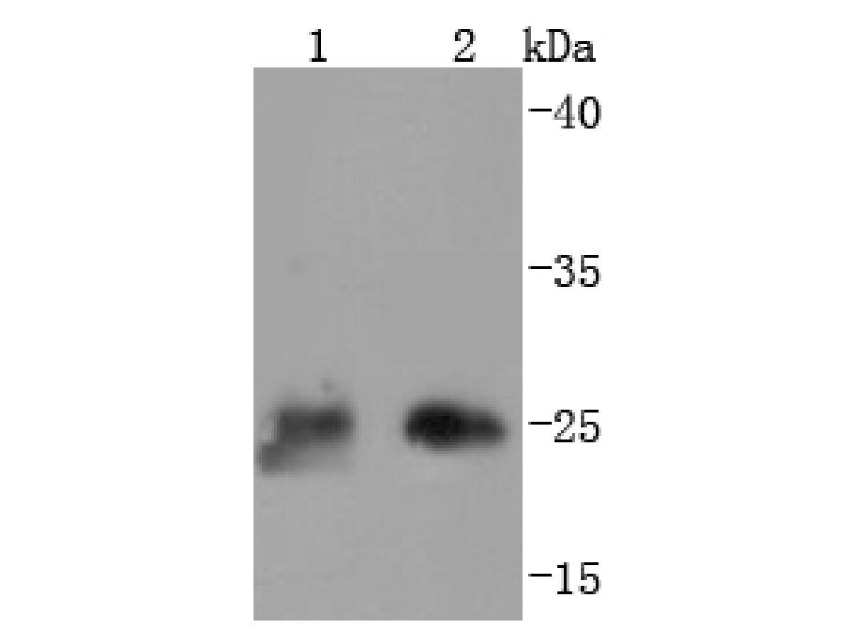 Western blot analysis of Thymidine Kinase 1 on different lysates using anti-Thymidine Kinase 1 antibody at 1/1,000 dilution.<br /> Positive control:   <br /> Lane 1: 293T             <br /> Lane 2: Hela