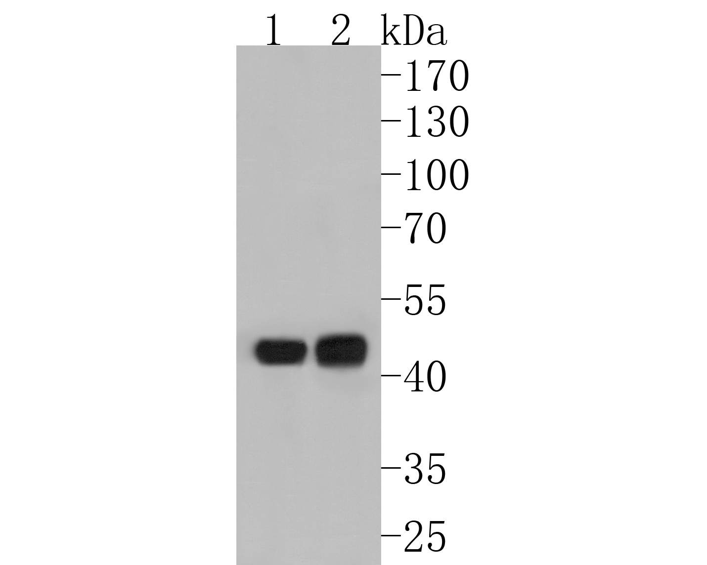 Western blot analysis of gamma Tubulin on different lysates. Proteins were transferred to a PVDF membrane and blocked with 5% BSA in PBS for 1 hour at room temperature. The primary antibody (ET1702-32, 1/500) was used in 5% BSA at room temperature for 2 hours. Goat Anti-Rabbit IgG - HRP Secondary Antibody (HA1001) at 1:5,000 dilution was used for 1 hour at room temperature.<br /> Positive control: <br /> Lane 1: Jurkat cell lysate<br /> Lane 2: A431 cell lysate