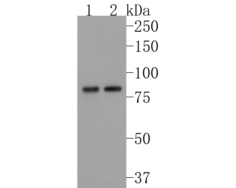 Western blot analysis of gamma Catenin on Hela cells lysates using anti-gamma Catenin antibody at 1/1,000 dilution.
