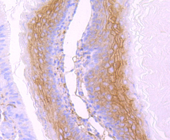 Immunohistochemical analysis of paraffin-embedded mouse stomach tissue using anti-gamma Catenin antibody. Counter stained with hematoxylin.