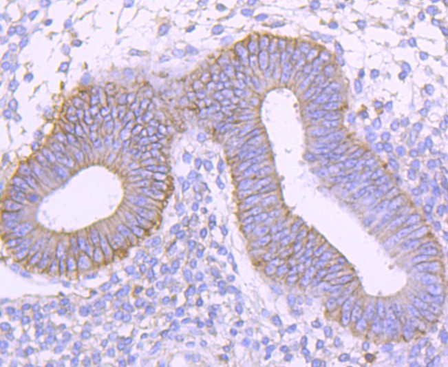 Immunohistochemical analysis of paraffin-embedded human uterus tissue using anti-CD99 antibody. Counter stained with hematoxylin.
