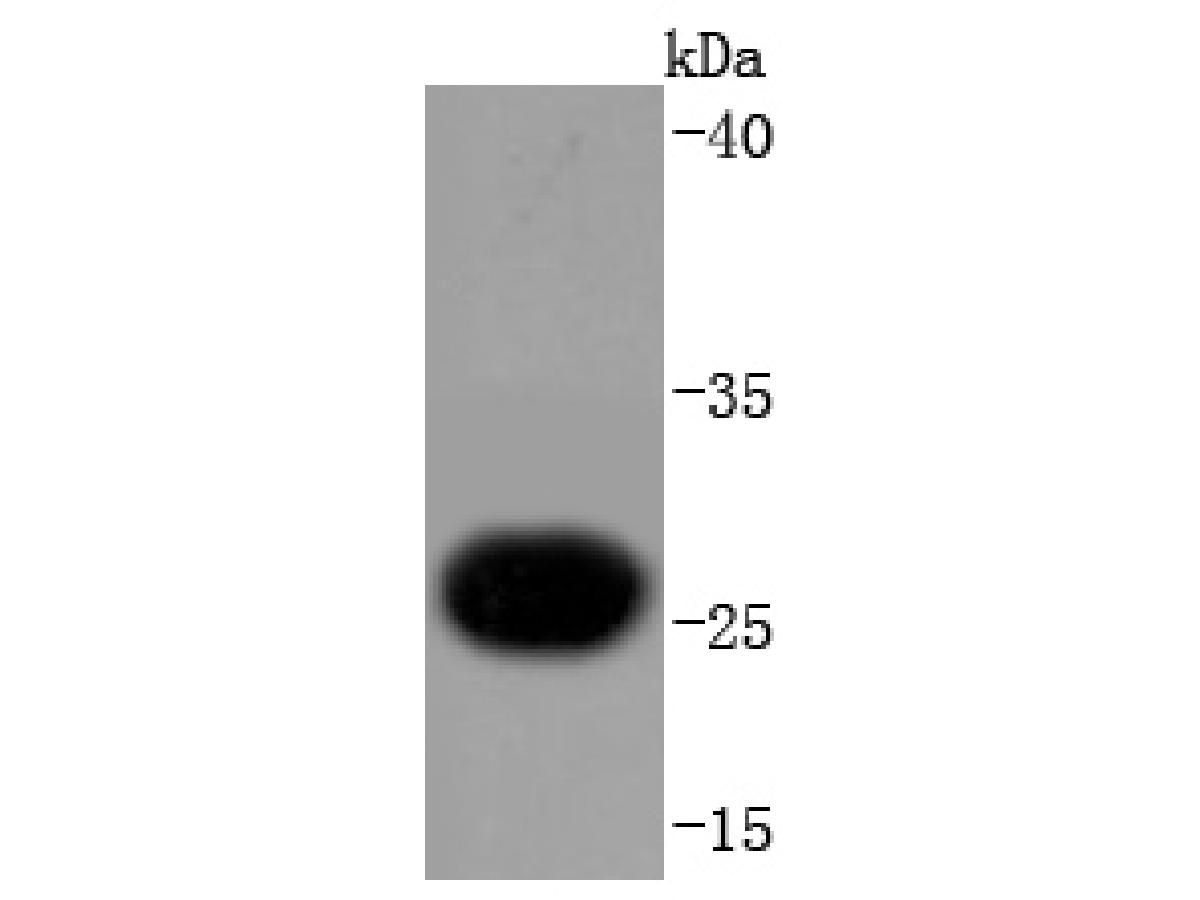 Western blot analysis of Troponin I on human heart lysates using anti-Troponin I antibody at 1/1,000 dilution.