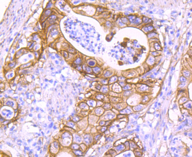 Immunohistochemical analysis of paraffin-embedded human gastric carcinoma tissue using anti-S100A10 antibody. Counter stained with hematoxylin.