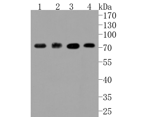 Western blot analysis of ABCG2 on different lysates using anti-ABCG2 antibody at 1/1,000 dilution.<br /> Positive control: <br /> Lane 1: HepG2 <br /> Lane 2: Human placenta