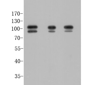 Western blot analysis of FOXP1 on different lysates using anti-FOXP1 antibody at 1/1,000 dilution.<br /> Positive control:   <br /> Lane 1: Hela            <br /> Lane 2: Jurkat <br /> Lane 3: MCF-7