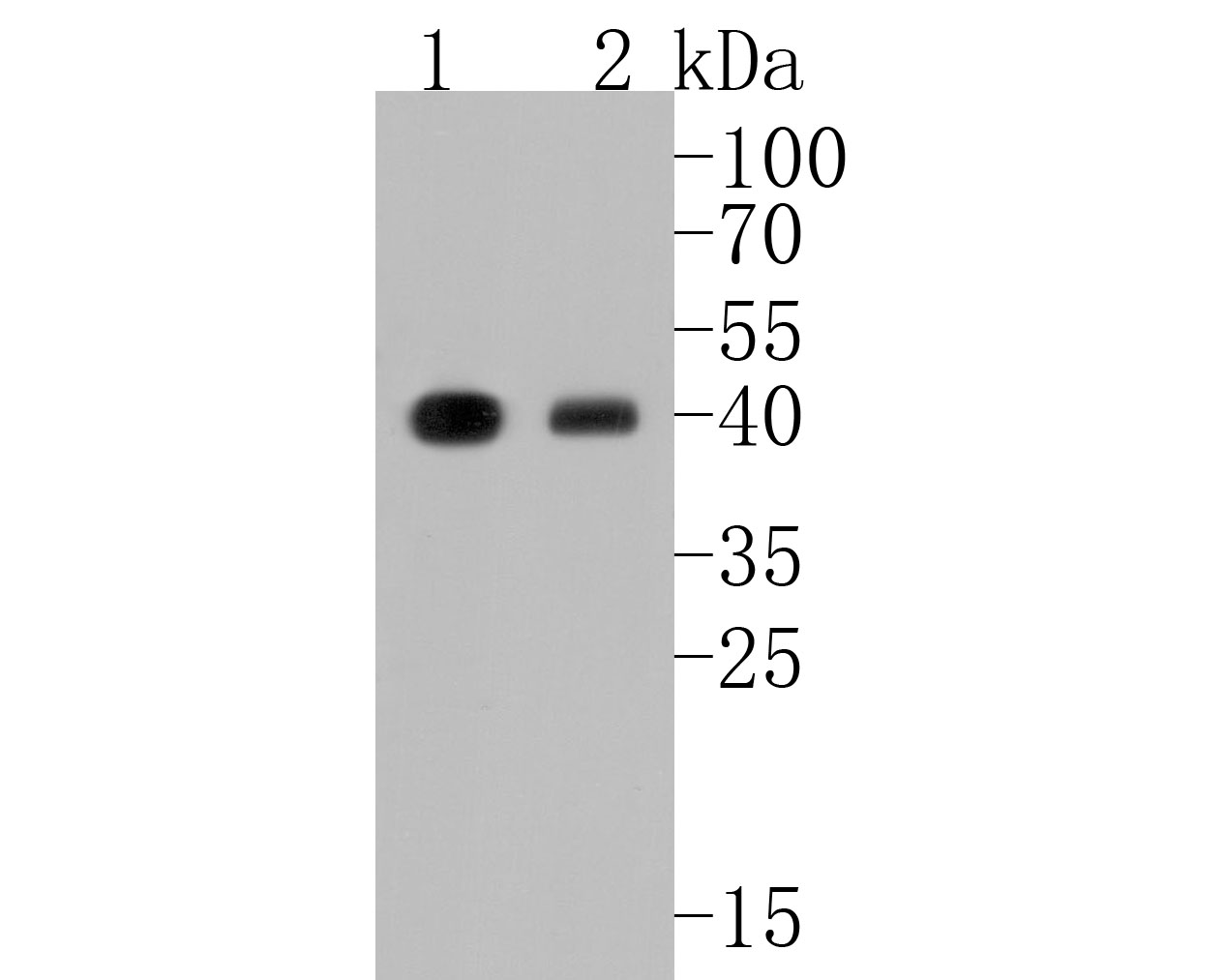 Western blot analysis of MHC class I on different lysates. Proteins were transferred to a PVDF membrane and blocked with 5% BSA in PBS for 1 hour at room temperature. The primary antibody (ET1702-47, 1/500) was used in 5% BSA at room temperature for 2 hours. Goat Anti-Rabbit IgG - HRP Secondary Antibody (HA1001) at 1:5,000 dilution was used for 1 hour at room temperature.<br /> Positive control: <br /> Lane 1: THP-1 cell lysate<br /> Lane 2: Raji cell lysate