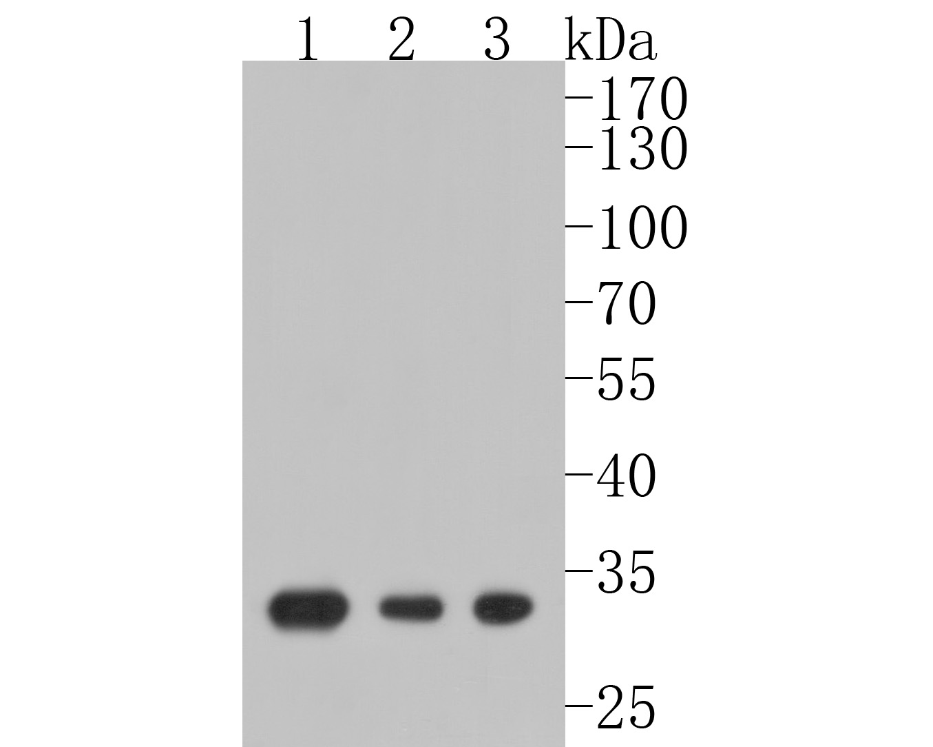 Western blot analysis of Galectin 3 on different lysates using anti-Galectin 3 antibody at 1/1,000 dilution.<br /> Positive control: <br /> Lane 1: Hela <br /> Lane 2: NIH/3T3 <br /> Lane 3: THP-1