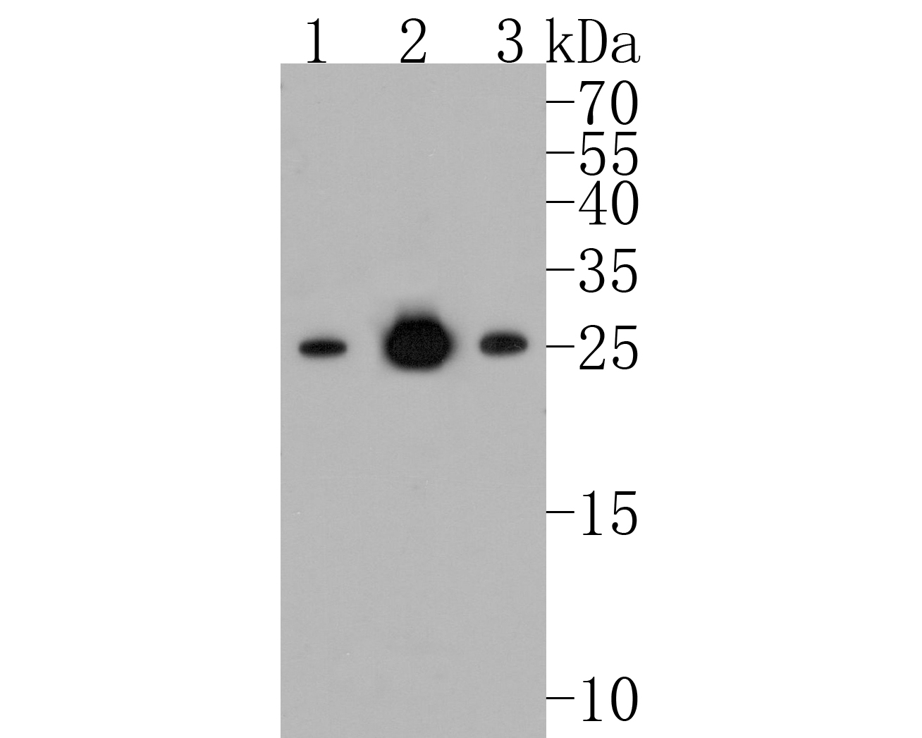 Western blot analysis of Bcl-2 on different lysates. Proteins were transferred to a PVDF membrane and blocked with 5% BSA in PBS for 1 hour at room temperature. The primary antibody (ET1702-53, 1/500) was used in 5% BSA at room temperature for 2 hours. Goat Anti-Rabbit IgG - HRP Secondary Antibody (HA1001) at 1:5,000 dilution was used for 1 hour at room temperature.<br /> Positive control: <br /> Lane 1: Hela cell lysate<br /> Lane 2: Jurkat cell lysate<br /> Lane 3: MCF-7 cell lysate